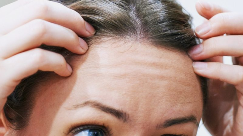 Menopause, Hair Loss, and Too Much Estrogen
