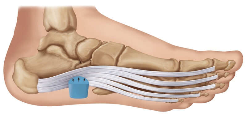 Popular Plantar Fasciitis Products